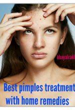 मुँहासे का घरेलू उपचार (Home Remedies For Pimple Solution In Hindi)